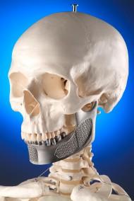Skull<br />Client: MCP-HEK GmbH